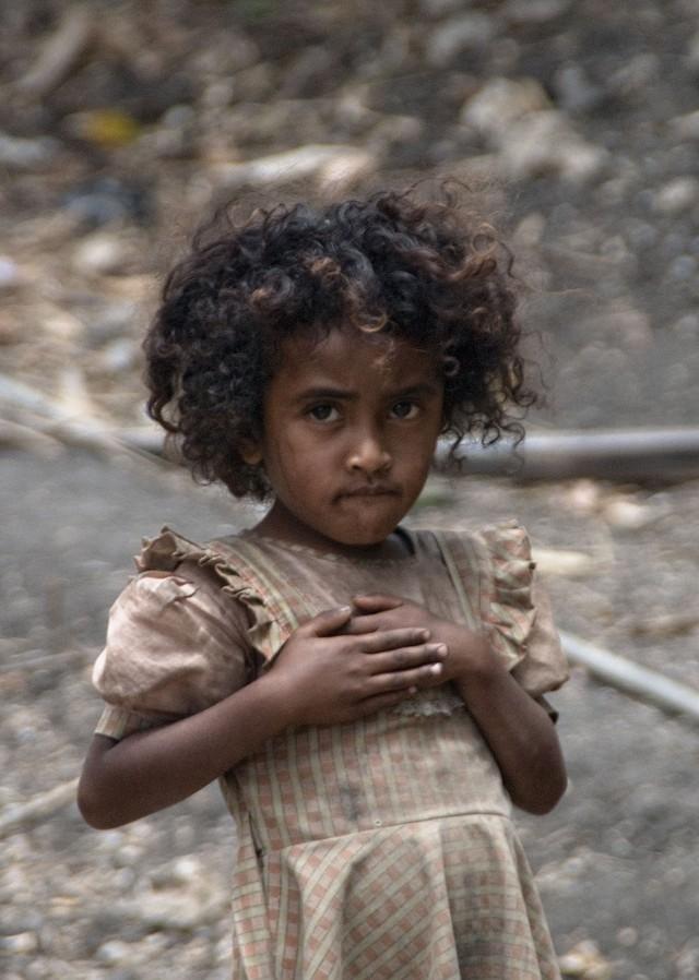 10 самых голодающих стран планеты